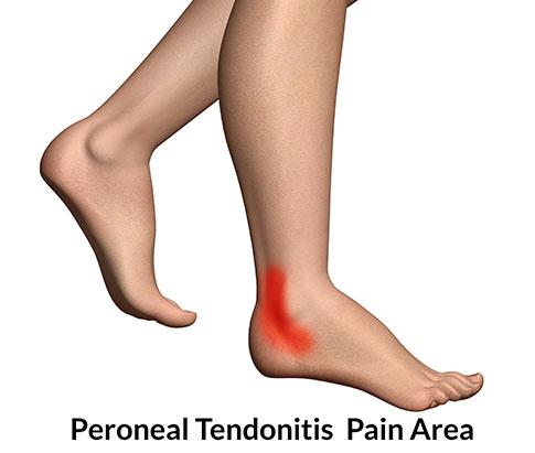 tendinitis del peroneo | Axpe Consulting Club de Atletismo