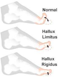 hallux-limitus-pie